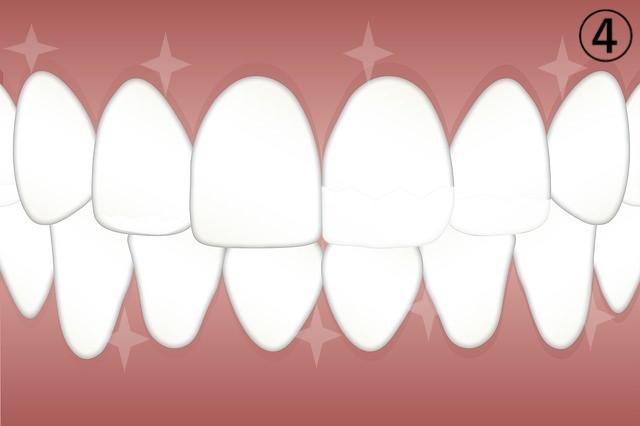 ④ピカピカの歯