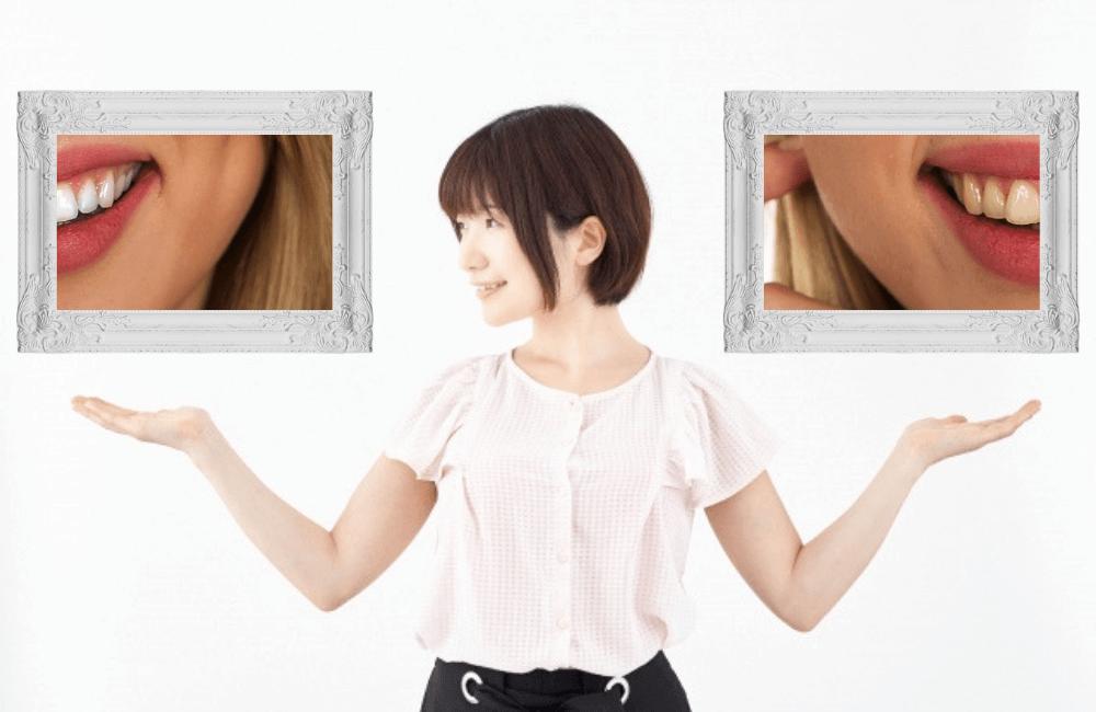 歯のホワイトニングをすると周りの人に差が付けられることがメリット