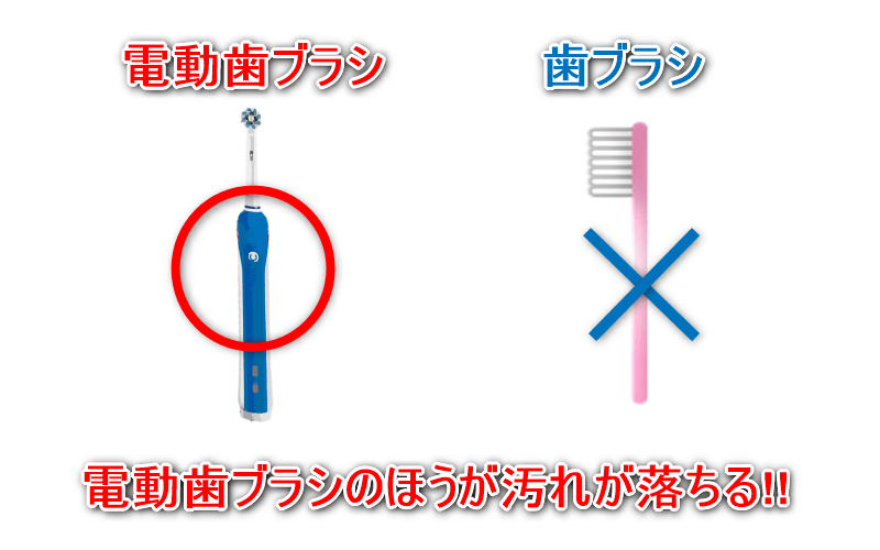 歯ブラシと電動歯ブラシを比較3
