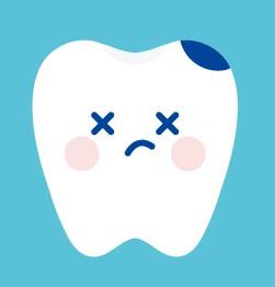 歯がダメージを受けている画像