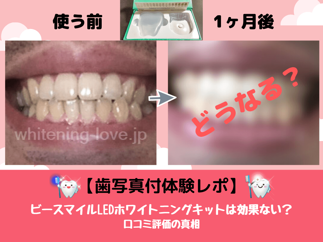 【歯写真付体験レポ】ビースマイルLEDホワイトニングキットは効果ない?口コミ評価の真相