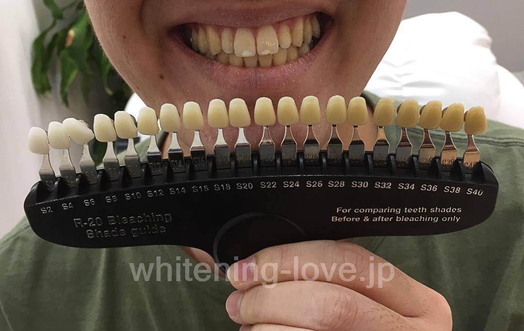 スターホワイトニングでホワイトニングする前の歯の写真