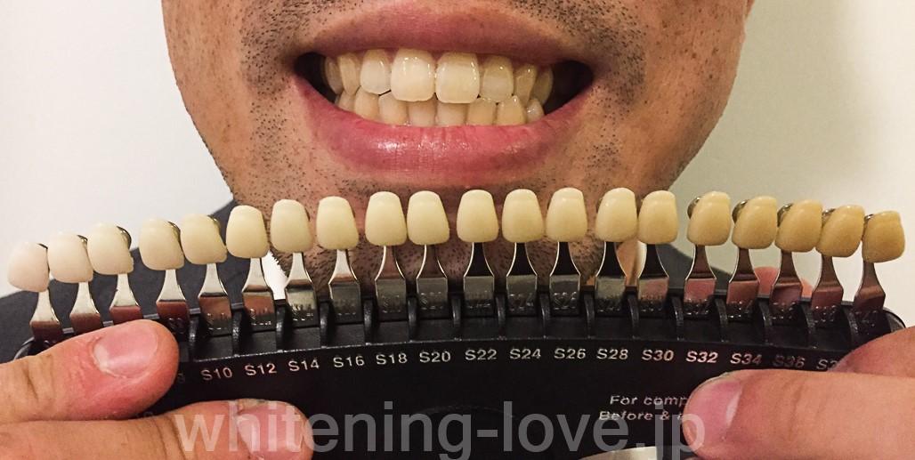 ビースマイルLEDホワイトニングキットを使っているMさんの歯の写真