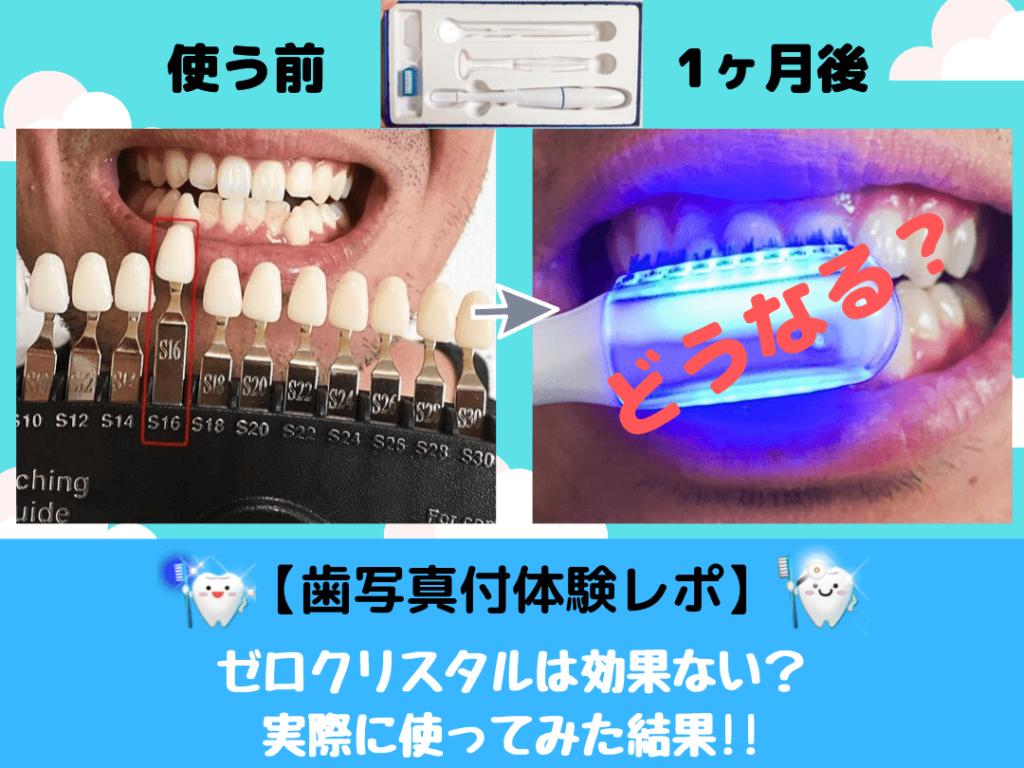 【歯写真付体験レポ】ゼロクリスタルは効果ない?口コミは嘘なの?