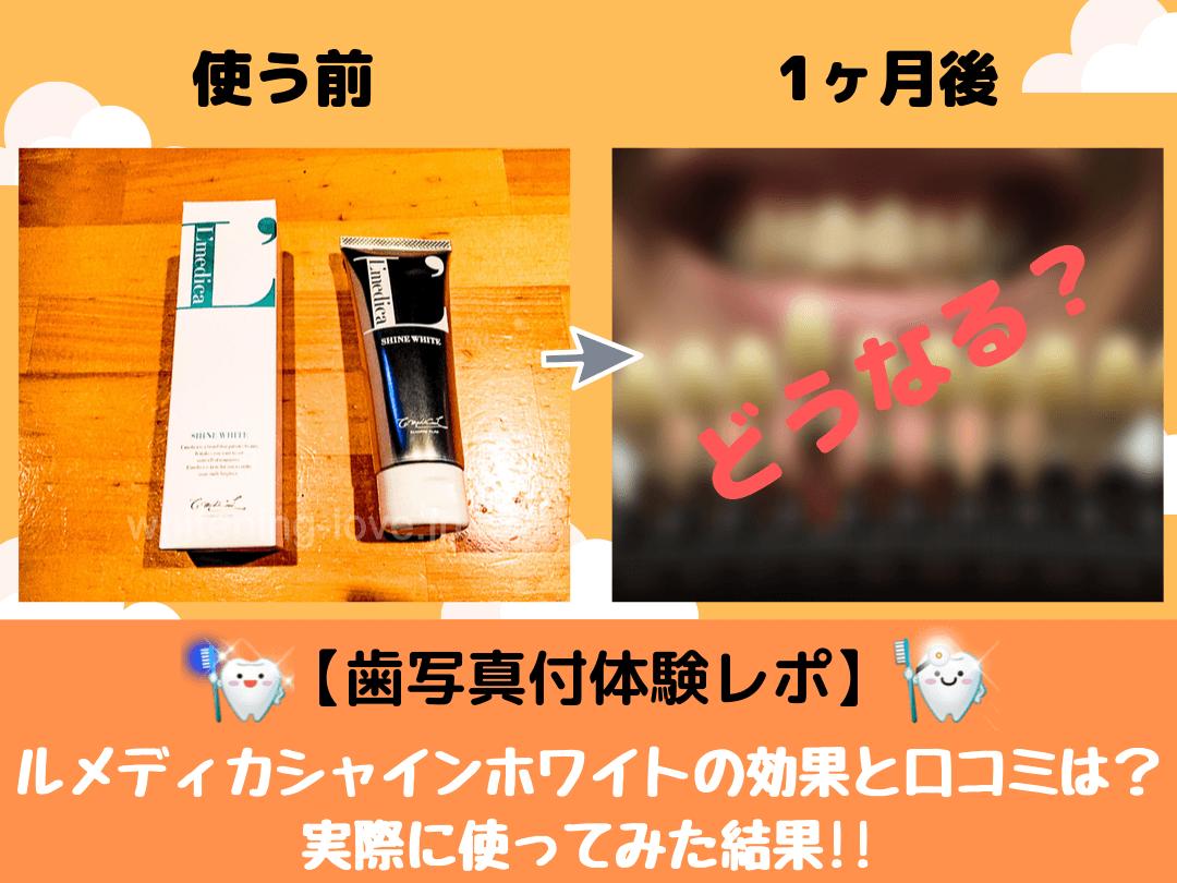 【歯写真付体験レポ】ルメディカシャインホワイトの効果と口コミは?